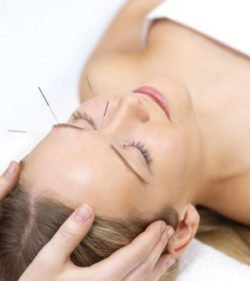facial acupuncture=