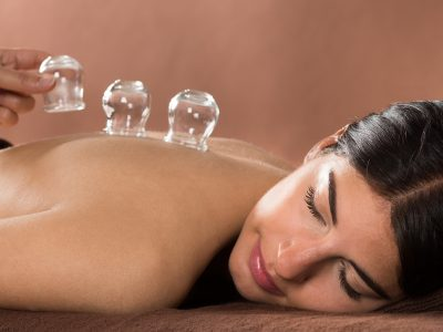 Woman Lying On Front Receiving Cupping Treatment On Back